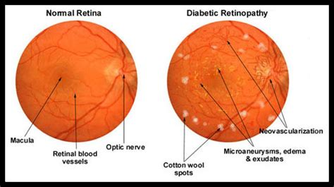 norman diabetic retinopathy picture 1