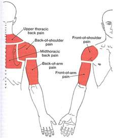 Muscle pain middle of upper arm picture 1
