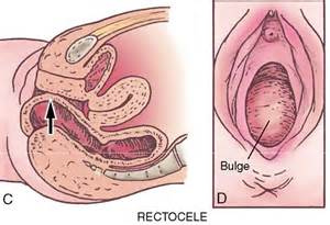 female urethra stretching picture 6