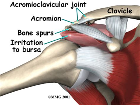 acromio-clavicular joint picture 2