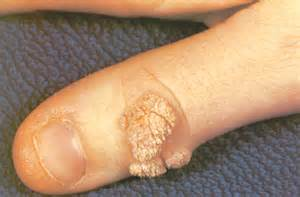 external genital warts picture 6