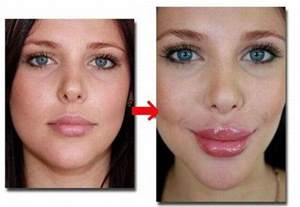 natural lip plumper by derma picture 1