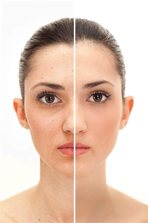 vitamin e skin oil picture 2