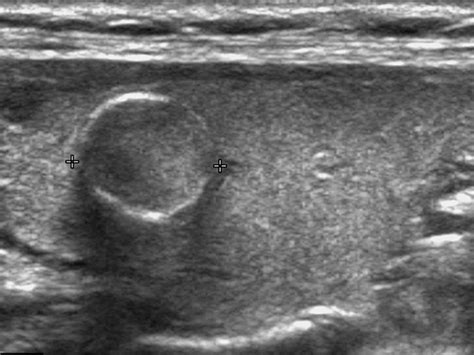 calcifications in thyroid nodules picture 1