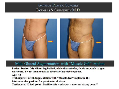 new york, penile fat injections by female dr. picture 4