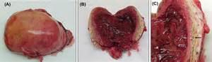 insufficient uterine enlargement picture 2