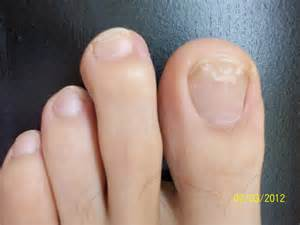 foot nail fungus picture 6