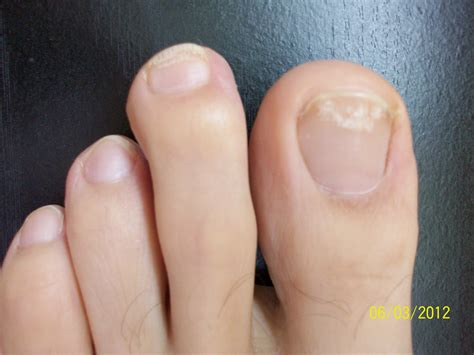 picture of toenail fungus picture 1