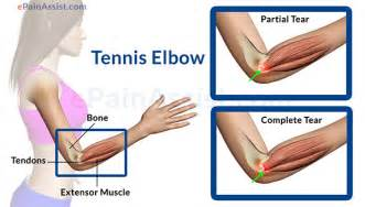 elbow joint pain picture 6