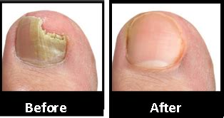 nail fungus laser treatment in texas picture 8