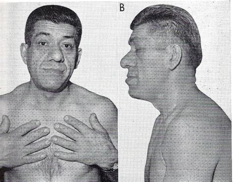 acromegaly penis picture 7