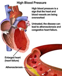 Effects of high blood pressure picture 3