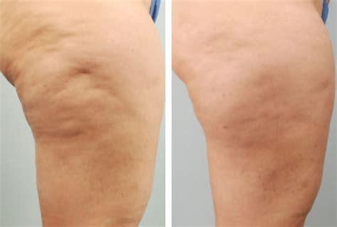 cellulite legs picture 18