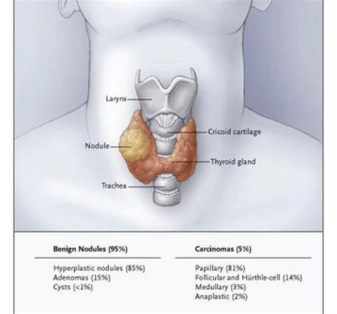 cyst throat thyroid picture 6