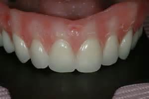 acrylic characterized teeth picture 2