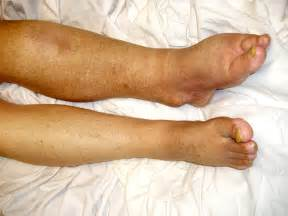weight loss for edema picture 5