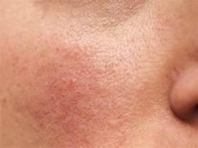 rosacea skin picture 1
