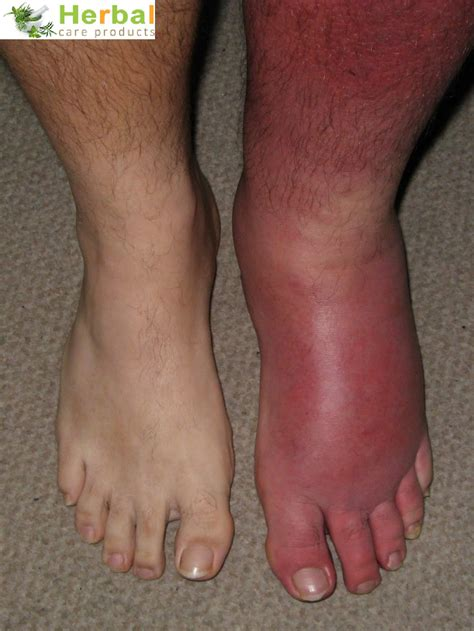 gout herbal picture 1