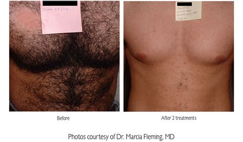 about laser hair removal picture 19
