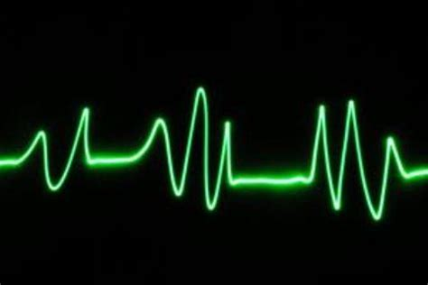 fast heart beat and dietrine picture 2