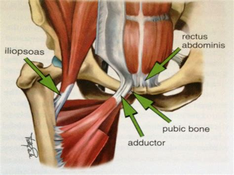 groin muscle pain picture 3