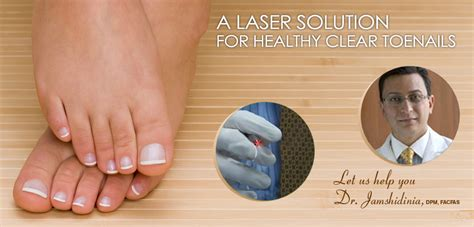 pinpiont laser for foot fungus in los angeles picture 3