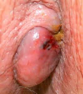 hemorrhoid prolapse picture 2