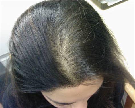 hormone hair loss male picture 19