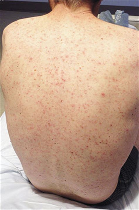 are hives a sign of liver distress? picture 12
