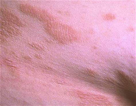 scientific name for herpes picture 5