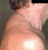 lump on back of neck due to weight picture 5