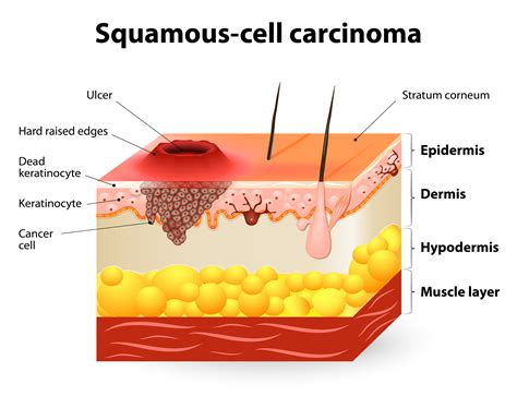 advanced squamous cell skin cancer picture 19