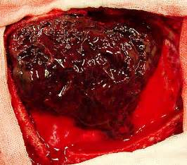 Blood flow after miscarriage picture 3