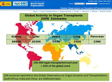 where is the most liver transplants done picture 5