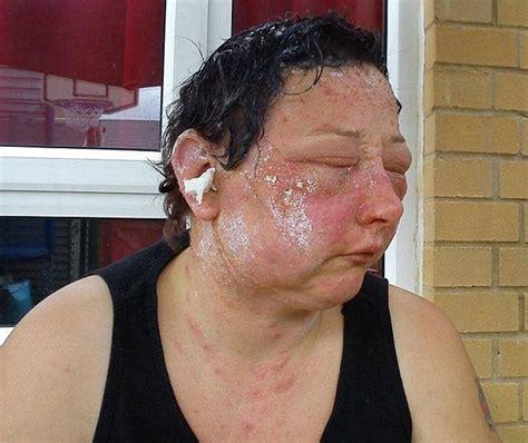 allergic reaction symptoms hair dye picture 6