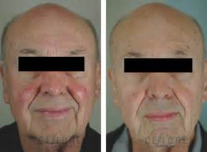 rosacea laser treatment picture 7