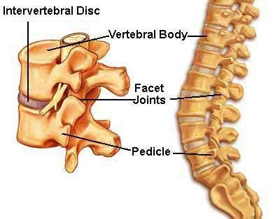 bilateral degenerative joint disease picture 5