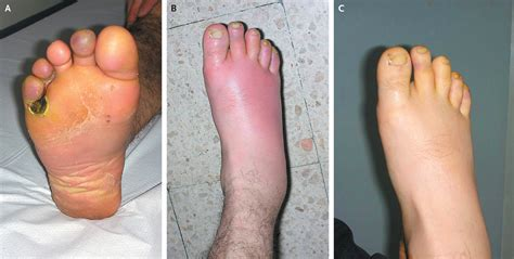 skin disease foot picture 3
