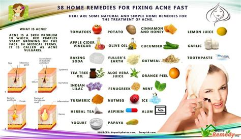 quick cures for acne picture 2