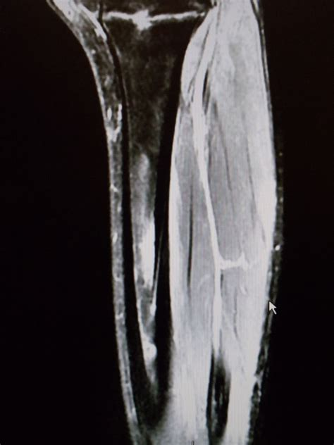 effects of bone fracture on circulation picture 8