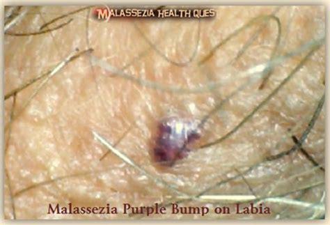 purple spots on lips that bleed picture 7