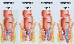 hemorrhoids symptoms picture 1