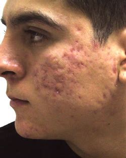 acne scars pock marks picture 5
