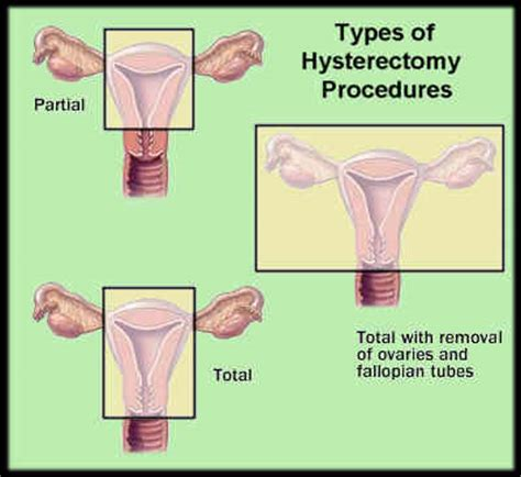 aging after full hysterectomy picture 18