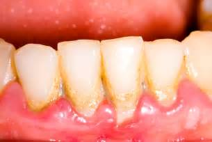 supplements that destroy tooth plaque picture 14