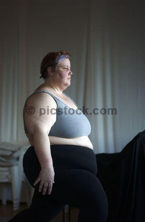 cellulite women big picture 14