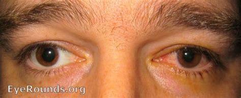 iritis and herpes symplex virus picture 9