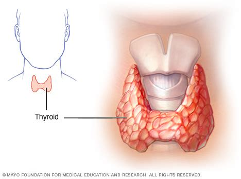 can thyroid nodule cause heart flutter picture 15