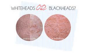 whitehead skin pictures picture 5
