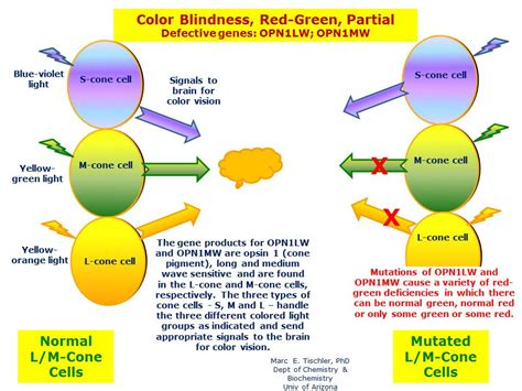 color blindness treatment in the philippines picture 6